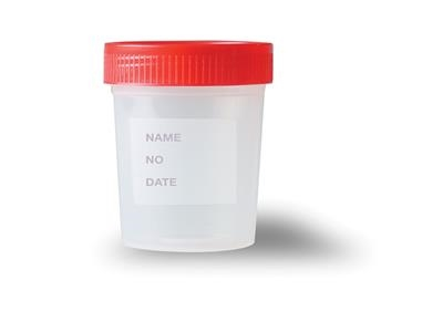 Urine Collection Containers